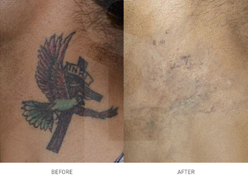 Tattoo Removal Auckland Cosmetic Laser Clinics Wellington New