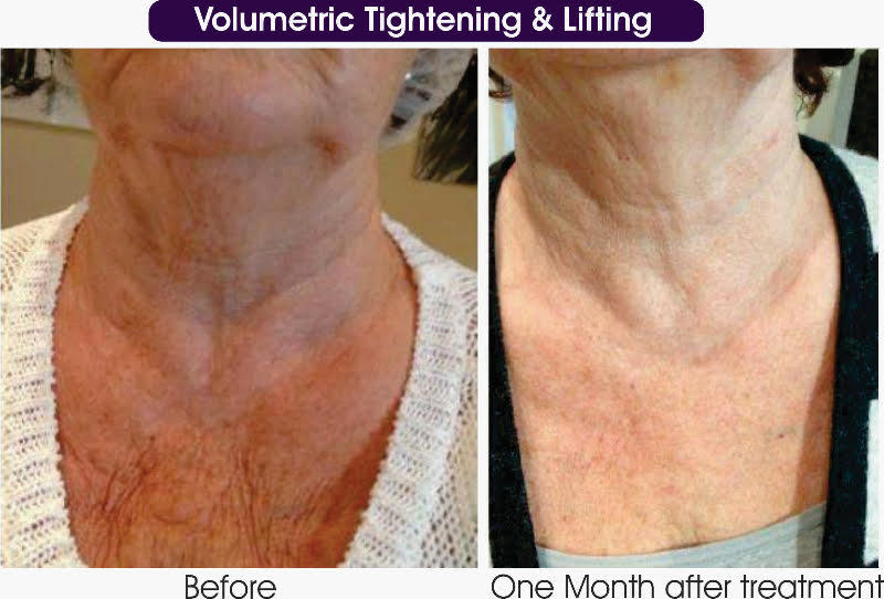 Volumetric Tightening & lifting