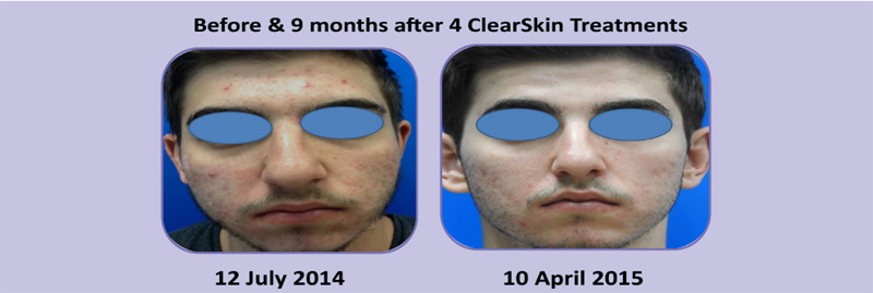 Clear Screen Treatment - before 9 months