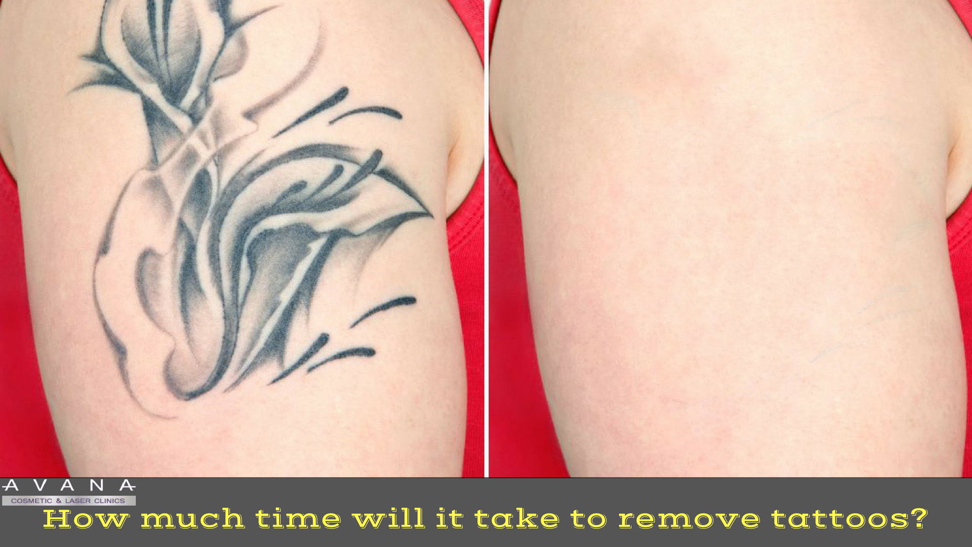 How much time will it take to remove tattoos?